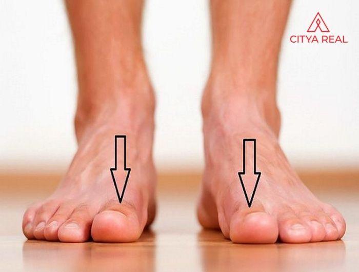 Bàn chân to, dài